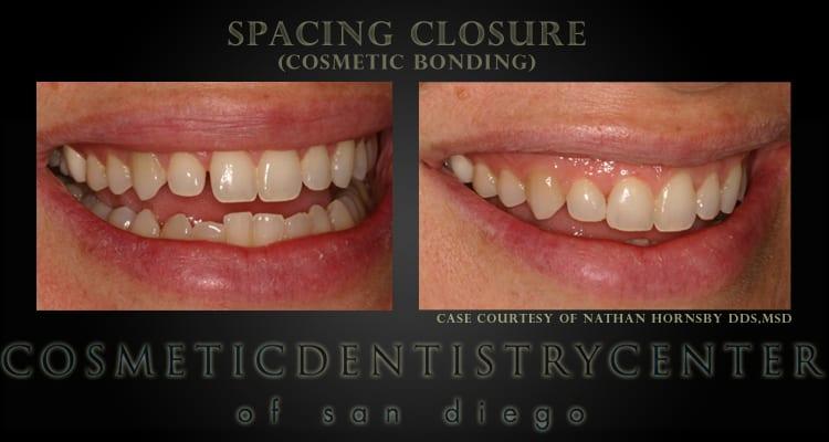 Cosmetic Bonding- Spacing Closure